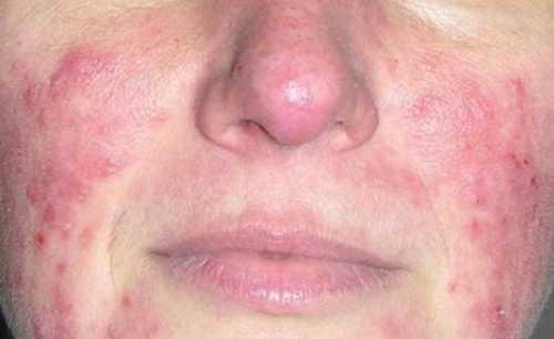 Дерматит на лице: симптомы, причины, это