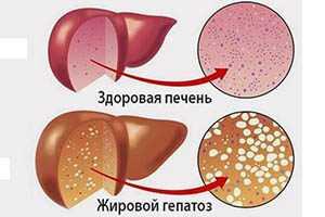 Жировой гепатоз печени: все симптомы, причины,