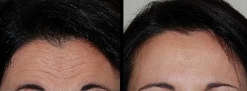 Лучшие советы по устранению морщин на лице