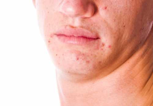 Чаще всего они являются следствием повышенных мужских гормонов или чрезмерного роста волос