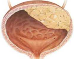 В некоторых случаях, особенно за рубежом, применяется лучевая терапия в дозе