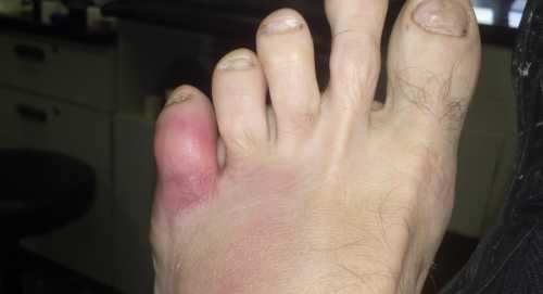 Болит мизинец на ноге